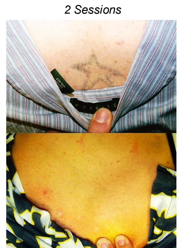 Laser tattoo removal for Steve o tattoo removal
